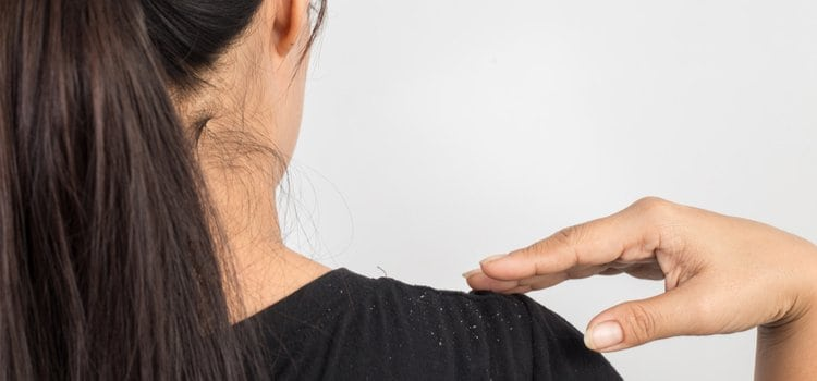 Uriage κερατοθυμθιστική αγωγή για σοβαρή πιτυρίδα & φολίδες